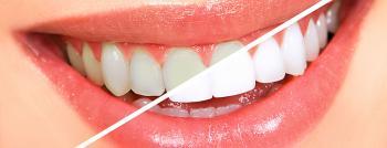 Dişlerinizi Evde Beyazlatmak İçin 3 Harika Yöntem - Hepsi Denendi!